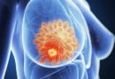 Contra el cáncer de mama, una nueva vacuna lo